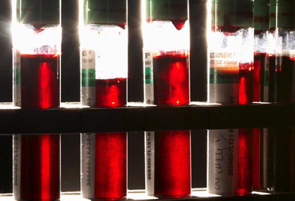 Um em cada cinco portugueses tem anemia